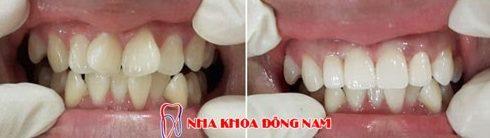 cách điều trị răng cửa có hình cánh bướm không cần niềng răng 6