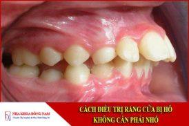 cách điều trị răng cửa bị hô không cần phải nhổ