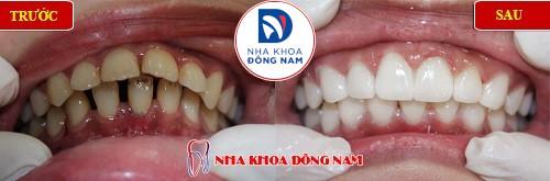 cách điều trị răng cửa bị hô không cần phải nhổ 2