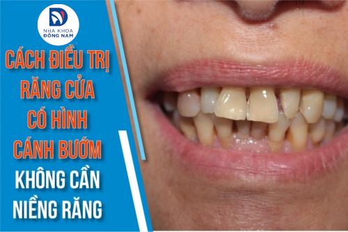 Cách Điều Trị Răng Cửa Có Hình Cánh Bướm Không Cần Niềng Răng