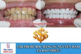 chi phí để bọc răng sứ nguyên hàm là bao nhiêu