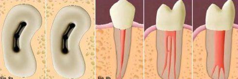 chữa tủy răng mất bao lâu thời gian mới xong 1