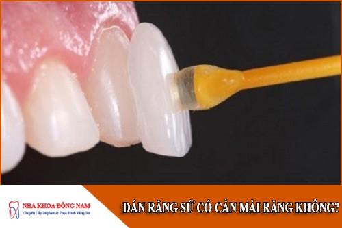 dán răng sứ có cần mài răng không