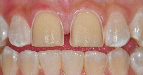 dán răng sứ có cần mài răng không 2