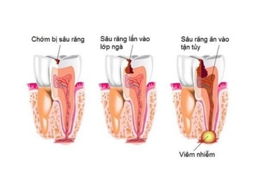 nguyên nhân viêm tủy răng