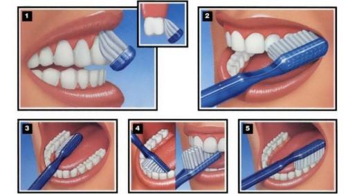 các bước chải răng đúng cách
