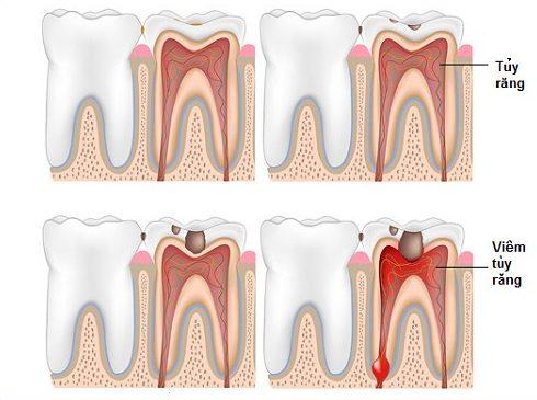 dấu hiệu bị viêm tủy răng dễ nhận biết 1