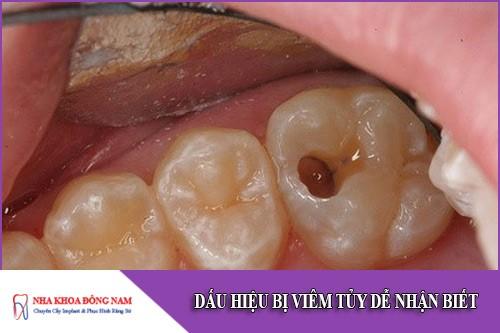 dấu hiệu viêm tủy răng dễ nhận biết