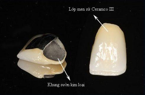 độ bền của răng sứ là bao nhiêu năm 2