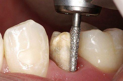 độ bền của răng sứ là bao nhiêu năm 5