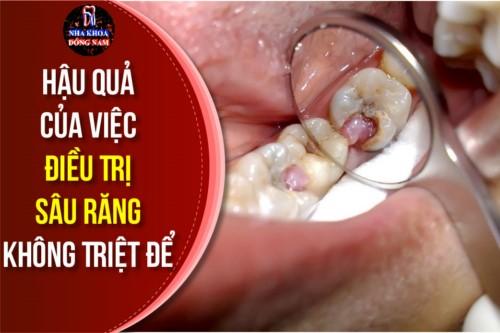 Hậu Quả Của Việc Điều Trị Sâu Răng Không Triệt Để