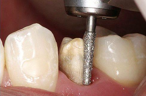 kỹ thuật làm răng sứ như thế nào mới đúng chuẩn 4