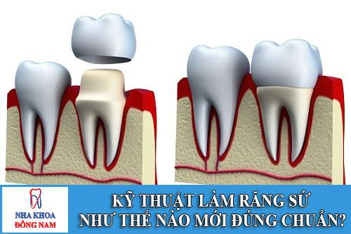 kỹ thuật làm răng sứ như thế nào mới đúng chuẩn