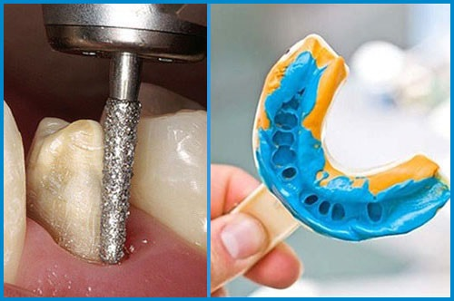 Quá trình mài răng lấy dấu hàm tại nha khoa đông nam