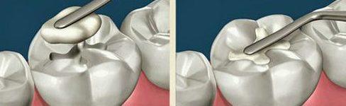 nguyên nhân, cách điều trị và phòng ngừa viêm tủy răng 3