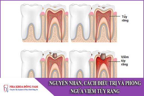 nguyên nhân cách điều trị và phòng ngừa viêm tủy răng