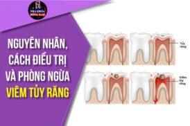 Nguyên nhân, cách điều trị và phòng ngừa Viêm Tủy Răng