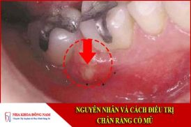 nguyên nhân và cách điều trị chân răng có mủ