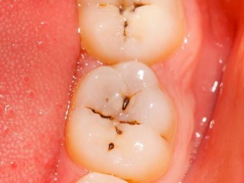 răng hàm bị sâu