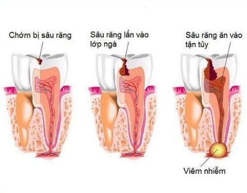 các giai đoạn sâu răng