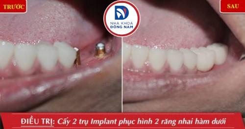trồng 2 trụ implant răng nhai