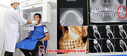 nhức răng trong cùng thì phải làm sao