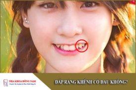 đắp răng khểnh có đau không