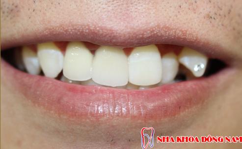 đắp răng khểnh có đau không 3