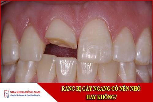 răng bị gãy ngang có nên nhổ hay không