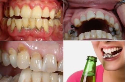 răng bị gãy ngang có nên nhổ hay không 1