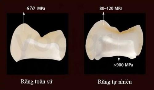 răng sứ không kim loại có độ bền cao