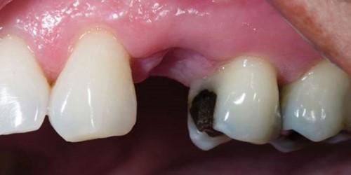 nguyên nhân gãy răng