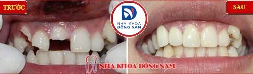 bọc sứ cho răng gãy