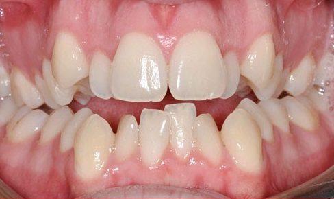 bật mí cách điều trị hàm răng khấp khểnh của bác sĩ 1
