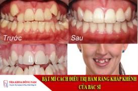 bật mí cách điều trị hàm răng khấp khểnh của bác sĩ