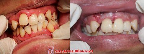 bật mí cách điều trị hàm răng khấp khểnh của bác sĩ 4