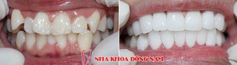 bật mí cách điều trị hàm răng khấp khểnh của bác sĩ 5