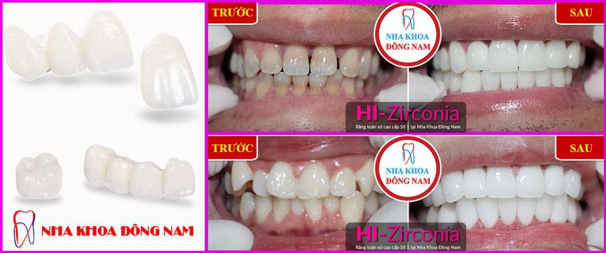 Bọc răng sứ HI-Zirconia tại nha khoa Đông Nam