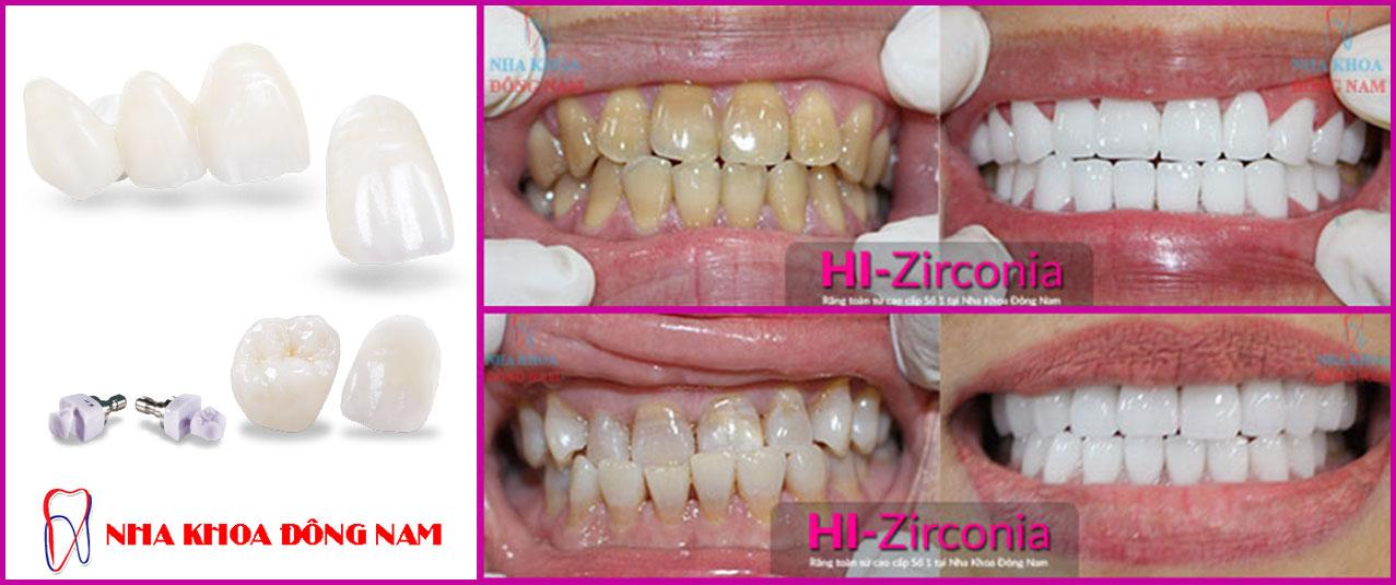bọc răng sứ hi-zirconia-tai-nha-khoa-dong-nam