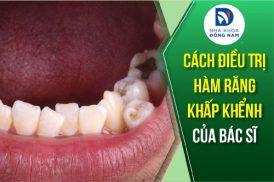 cách điều trị hàm răng bị khấp khểnh của bác sĩ