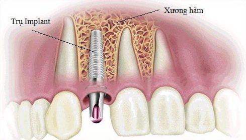 phương pháp cấy ghép implant