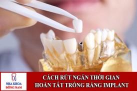 cách rút ngắn thời gian hoàn tất trồng răng implant 1