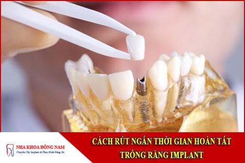 cách rút ngắn thời gian trồng răng implant
