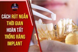cách rút ngắn thời gian hoàn tất trồng răng implant 7