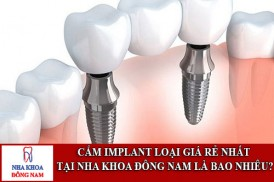cắm implant loại giá rẻ nhất tại nha khoa đông nam là bao nhiêu