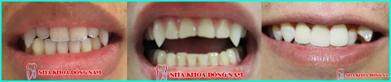 Đắp răng nanh tại nha khoa đông nam