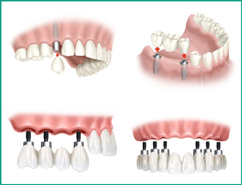 Trồng răng Implant ETK active