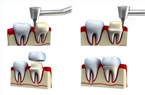 khi nào bắt buộc phải chữa tủy răng để bọc sứ 1