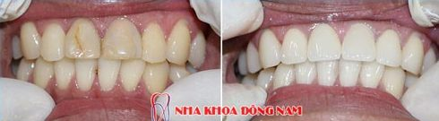 khi nào bắt buộc phải chữa tủy răng để bọc sứ 4