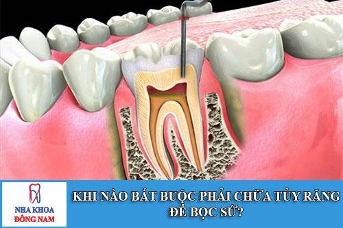 khi nào bắt buộc phải chữa tủy răng để bọc sứ